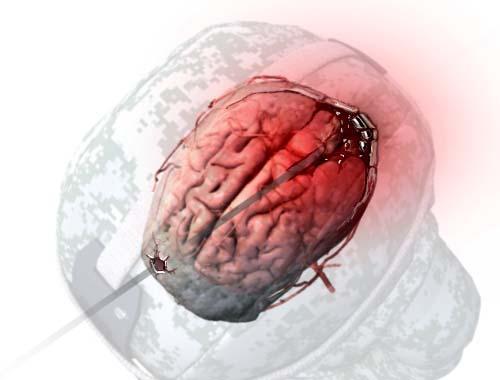 trauma brain injury